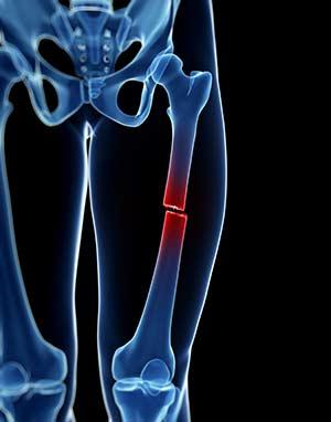 Truvada Osteoporosis